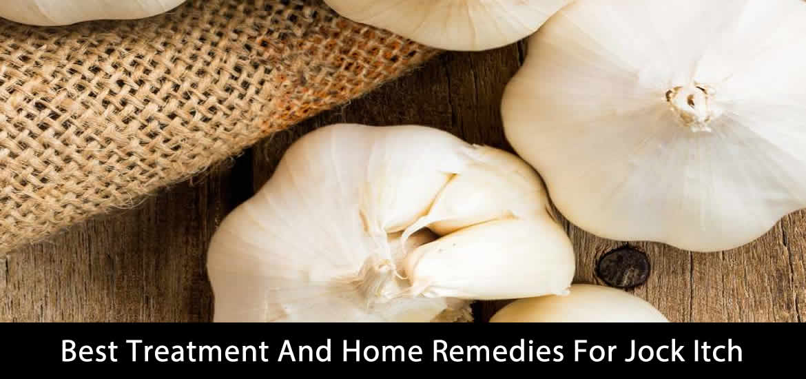 best treatment and home remedies for jock itch
